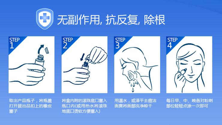 泽平 祛痘粉刺痘印疤痕 痘印消30ml-家电数码比