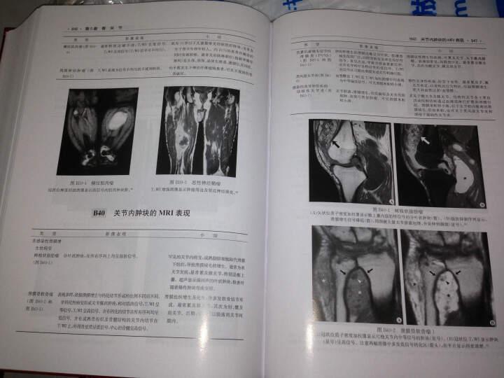 临床影像鉴别诊断图谱(中文翻译版 原书第5版) 晒单图