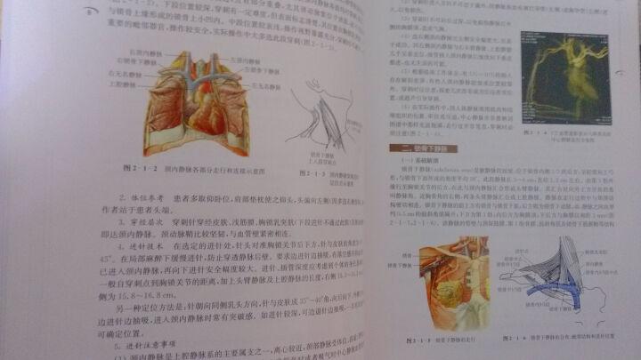 血液透析血管通路技术与临床应用(第2版) 晒单图