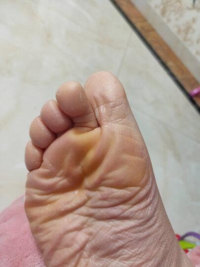 杨四郎灰指甲专用套装(甲一净5g+20g 包扎型 顽固增厚严重适用 非药品) 晒单图