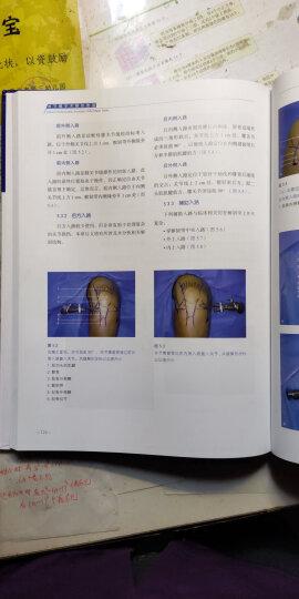 关节镜手术解剖图谱 晒单图