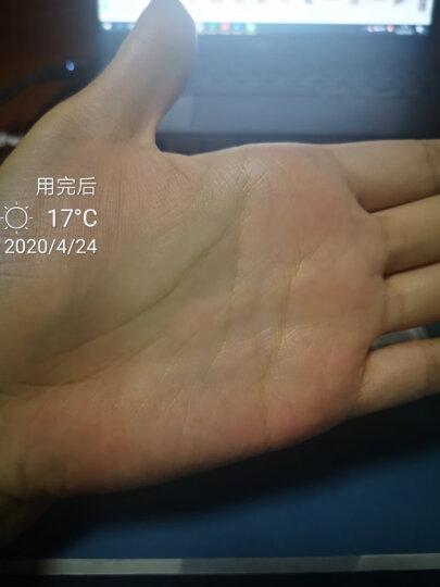 皮康王 复方酮康唑软膏 7G 晒单图