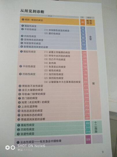 内镜诊断与鉴别诊断图谱:下消化道(第2版) 晒单图