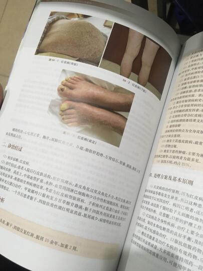 住院医师规范化培训皮肤科示范案例 晒单图