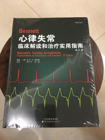Bennett心律失常:临床解读和治疗实用指南(第8版) 晒单图