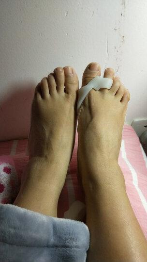 足峰升级款拇外翻硅胶分趾器大脚骨脚趾纠正器日用重叠脚趾分离顺趾垫疼痛护理套 S号1双(小脚趾使用) 晒单图