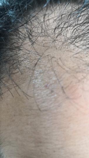 白云山 中一固肾生发丸 30g/盒 固肾养血 斑秃肝肾虚脱发生发 晒单图