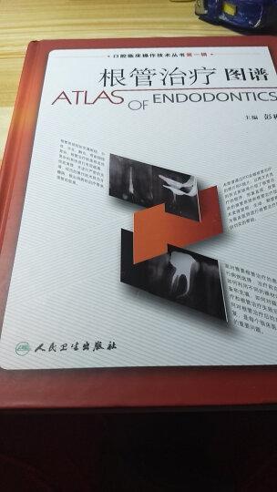 口腔临床操作技术丛书·根管治疗图谱 晒单图