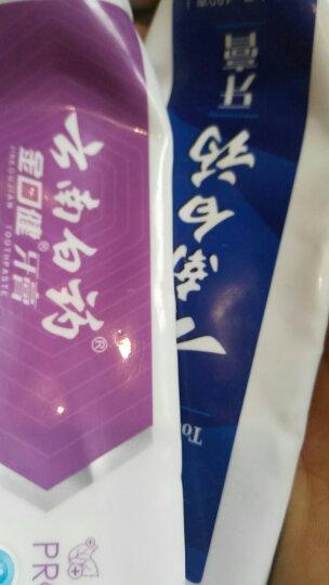 云南白药 益优清新3支套装 益生菌牙膏 (清新晨露100g+益优冰柠105g+益优薄荷105g) 新老包装随机发货 晒单图