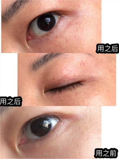 【莎莎sasa】StriVectin/斯佳唯婷抗皱眼霜眼部精华 紧致抗皱修复眼周改善去黑眼圈 30毫升 晒单图
