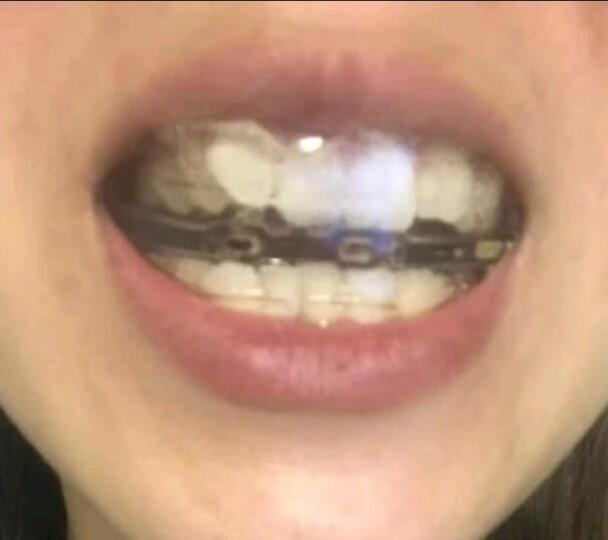 隐形矫正牙套 牙齿矫正器 矫正龅牙正畸保持器 夜间防磨牙牙套 硅胶牙套 双面护齿 一阶段 晒单图
