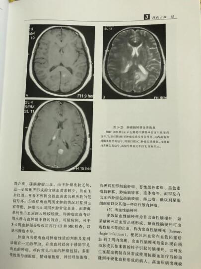 中枢神经系统CT和MR鉴别诊断(第3版) 晒单图