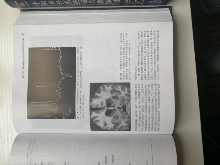 中枢神经系统磁共振成像(第3版)(上下卷) 晒单图