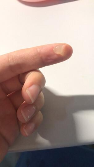 马应龙 红霉素软膏 10g 晒单图
