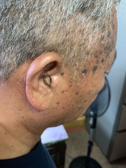 西门子老年人无线隐形耳内式助听器 晒单图