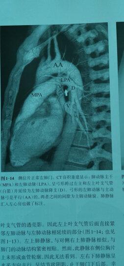 影像学大师系列:胸部影像学 晒单图