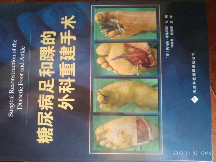 糖尿病足和踝的外科重建手术 晒单图