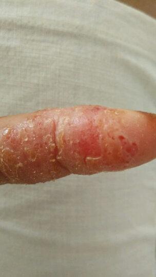 仙琚 糠酸莫米松乳膏5g(湿疹、神经性皮炎,异位性皮炎及皮肤瘙痒症) 晒单图