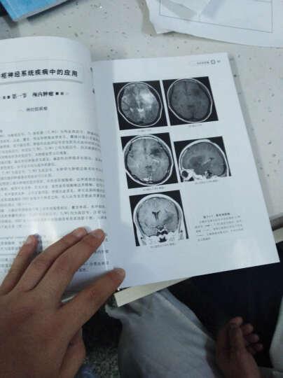 影像读片从入门到精通系列--MRI读片指南(第二版)(第2版) 晒单图