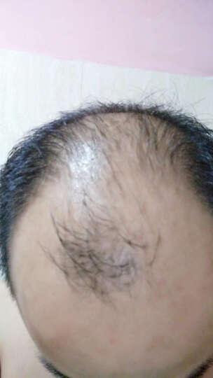 美继 生发液护发快速增发密发生发育发脂溢性防脱发长发液头发增长液秃顶斑秃掉发喷雾30ml 晒单图