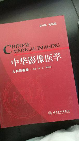 中华影像医学:儿科影像卷 晒单图