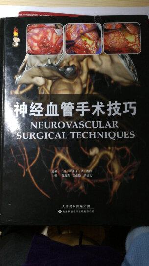神经血管手术技巧 晒单图