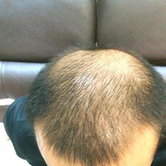 魔香 【开业买1送1】生长头发增长液防脱发增发密发固发变长发剂育发掉发护发精油洗发水 买6送3 晒单图