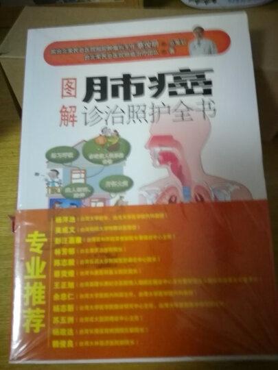 图解肺癌诊治照护全书 晒单图