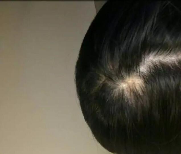 妮雅丝 【买2送1】防脱育发液 快速生长头发增发密发固发烫染受损养发滋养控油 防脱掉发洗发水 育发液30ml 晒单图