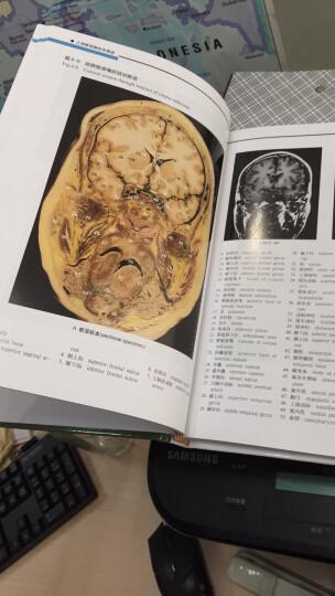 人体断层解剖学图谱 晒单图