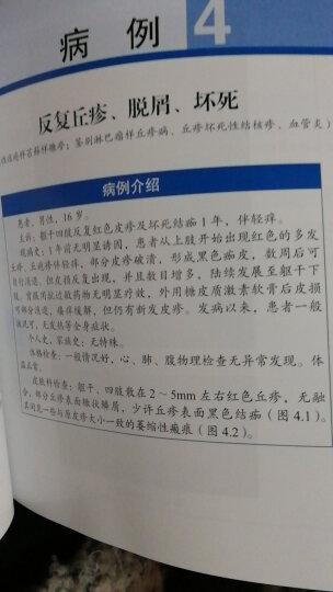 北京大学第一医院皮肤科临床思维教程:以问题为中心的探讨 晒单图