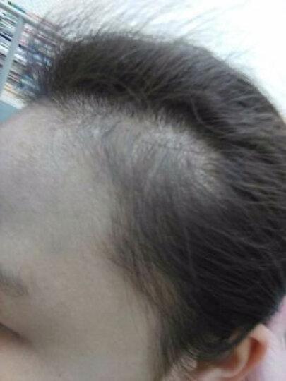 妮雅丝 防脱育发液快速生长头发增发密发固发烫染受损养发滋养控油防脱掉生头发 防脱育发液 晒单图