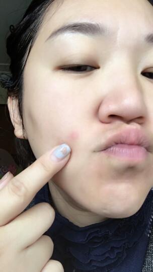 可可星(Kocostar)痘痘贴 17g 3包共36贴 (带镜子隐形去痘美颜祛痘贴淡化痘印贴面膜) 韩国原装进口 晒单图