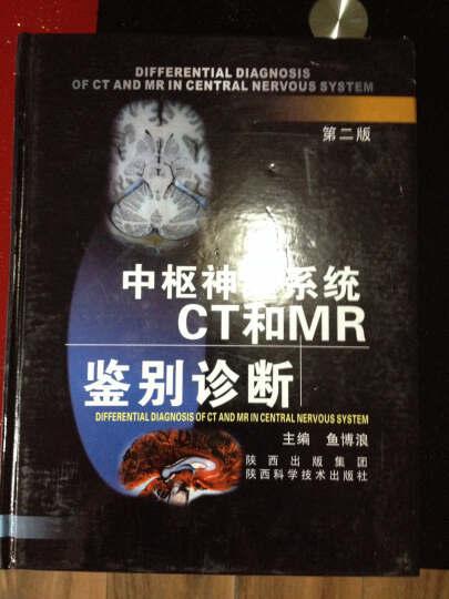中枢神经系统CT和MR鉴别诊断 晒单图