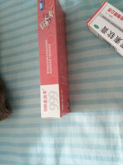 马应龙 龙珠软膏 10g 晒单图