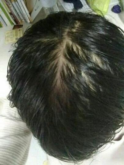 妮雅丝 防脱育发液 快速生长头发增发密发固发烫染受损养发男女士滋养控油防脱掉发 30ml 晒单图