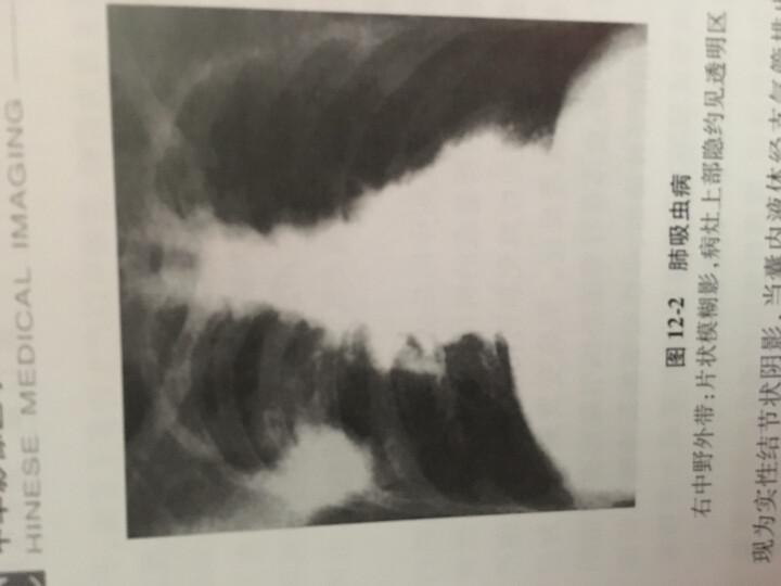 中华影像医学(第2版) 晒单图