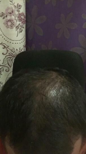 图姿兰(TUZILAN) 生发增发密发防脱发发囊活素防脱发增发密发头发增长液男育发生新发溢脂 三盒装-周期装 晒单图