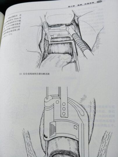腹部外科手术学 晒单图