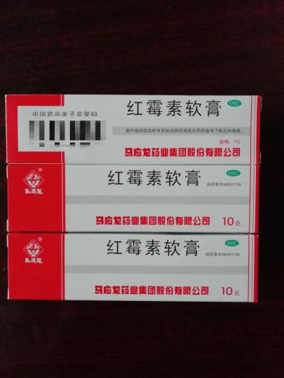 马应龙 红霉素软膏10g (91842) 3盒装 晒单图