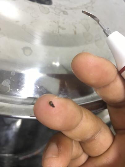 家用超声波洗牙机洗牙器冲牙器洁牙机去牙渍牙结石牙菌斑牙垢无水 超声波洗牙机(含2套工作尖G1+G2尖头和宽头) 晒单图