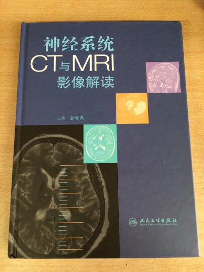 神经系统CT与MRI影像解读 晒单图