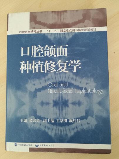 口腔医学精粹丛书:口腔颌面种植修复学(国家十一五重点规划出版项目) 晒单图