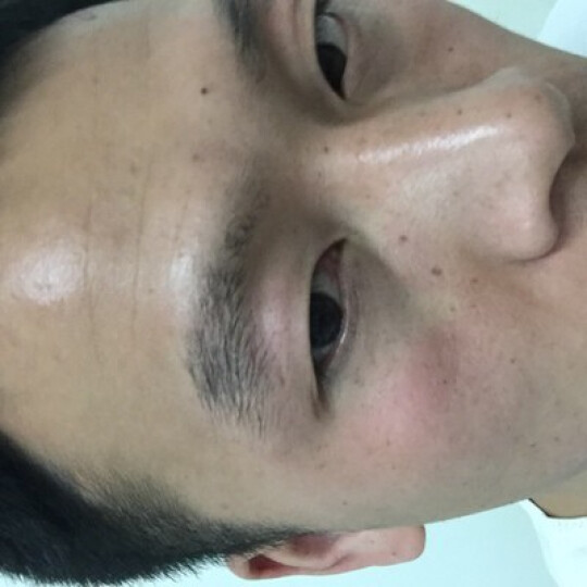 落健(Rogaine) 落健胡子生长液浓密眉毛滋养液男鬓角毛发胡须增长液体胸毛生长液 深蓝色 晒单图