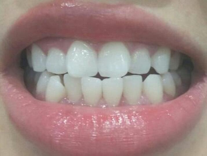 牙齿美白仪美牙仪口腔美白洗牙洁牙粉去黄牙烟牙牙垢烟渍四环素牙结石口臭白牙素口腔套餐仪器 标准版(4支美白凝胶+充电宝+牙托+比色卡) 晒单图
