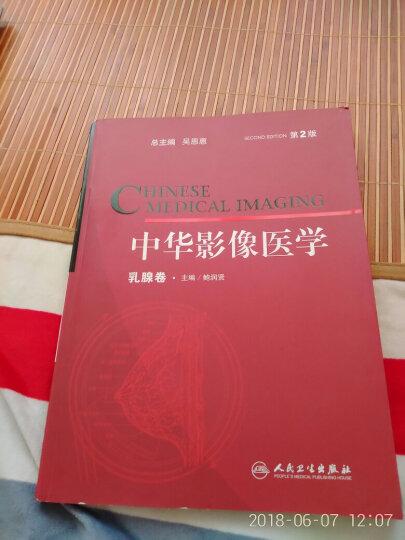 中华影像医学(乳腺卷)(第2版) 晒单图