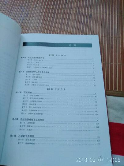 中华影像医学·肝胆胰脾卷(2版) 晒单图