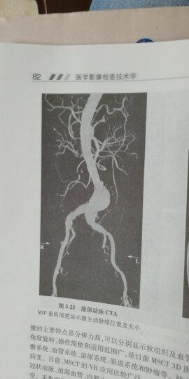 医学影像检查技术学(第3版)(附DVD-ROM光盘1张) 晒单图