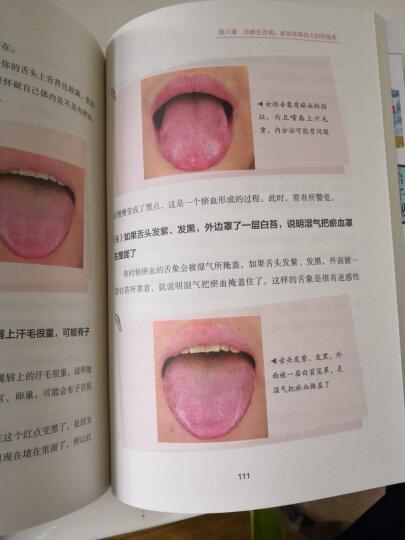 图解舌诊:伸伸舌头百病消 晒单图