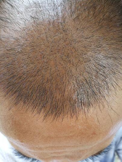发狮 生长头发液防脱发秃顶头发增长精华液增发密发育发男女脂溢性防掉养发护发健发固发 育发液 一疗程/三瓶装 晒单图